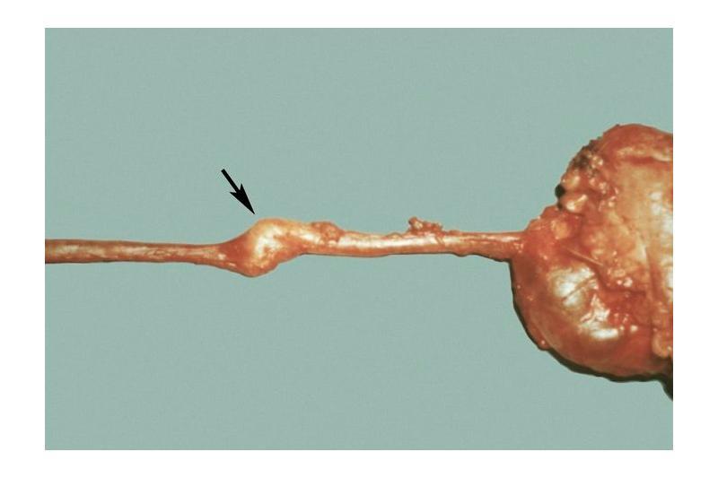 Опухоли мочеточника