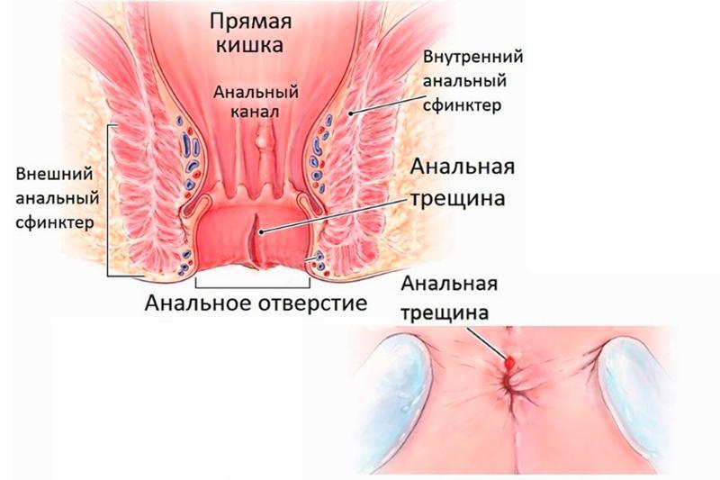 Как выличить анальные трещины