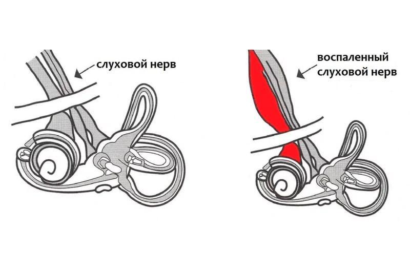 Левосторонний неврит