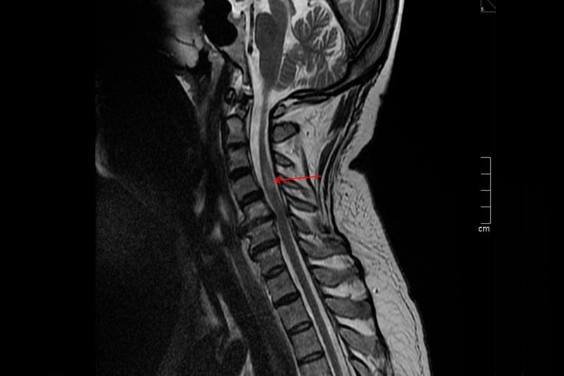 Ишемический спинальный инсульт