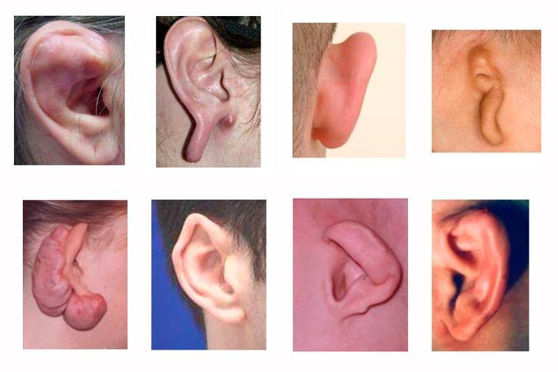 Болезни ушной раковины у человека - их причины и лечение