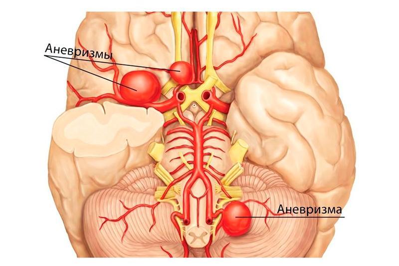 Аневризмы артерий — причины, симптомы, диагностика, лечение — Сосудистая хирургия