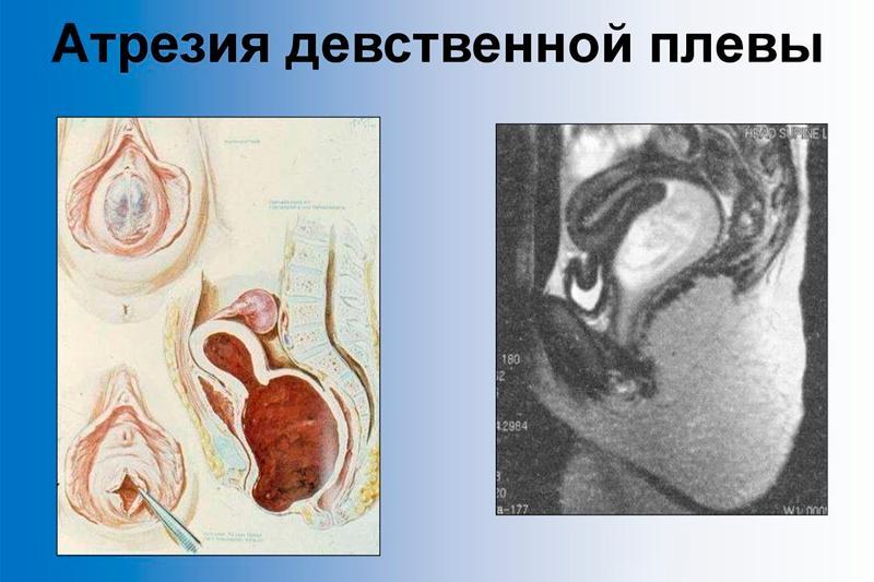 прощения, что домашка русское порно лижет анус прост Жаль, что