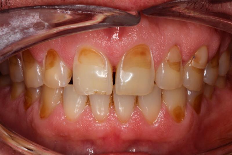 Эрозия зубов
