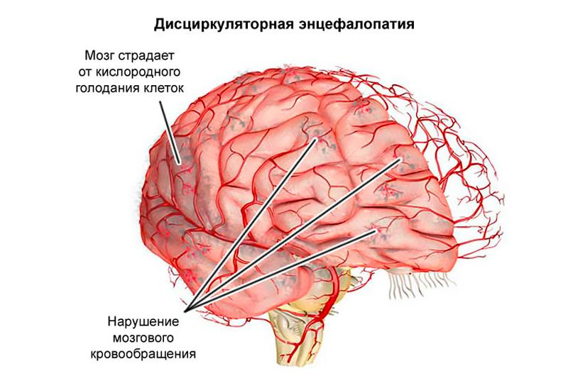 35cdc7782396e67c0c920746af251146 - Causes of the symptoms and treatment of discirculatory encephalopathy