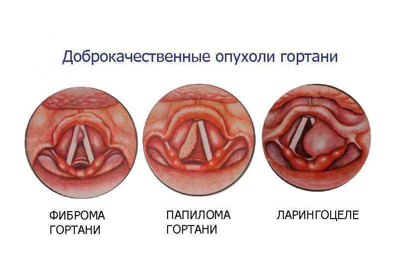Доброкачественные опухоли гортани