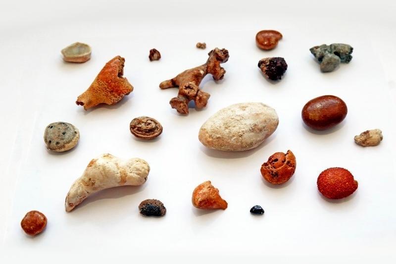 Камни в мочеиспускательном канале