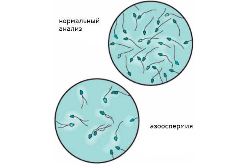 kak-raspoznat-zdorovuyu-spermu-u-muzhchin