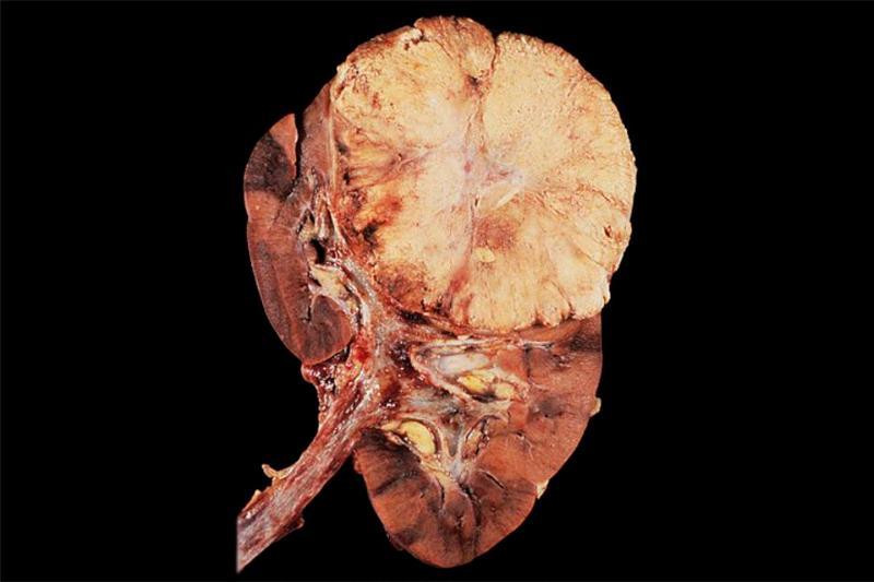 Гипернефрома: причины, симптомы, диагностика и лечение