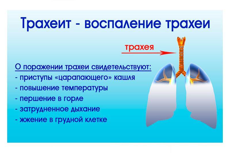 как лечить трахейный кашель - 5