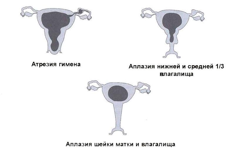 Атрезия матки