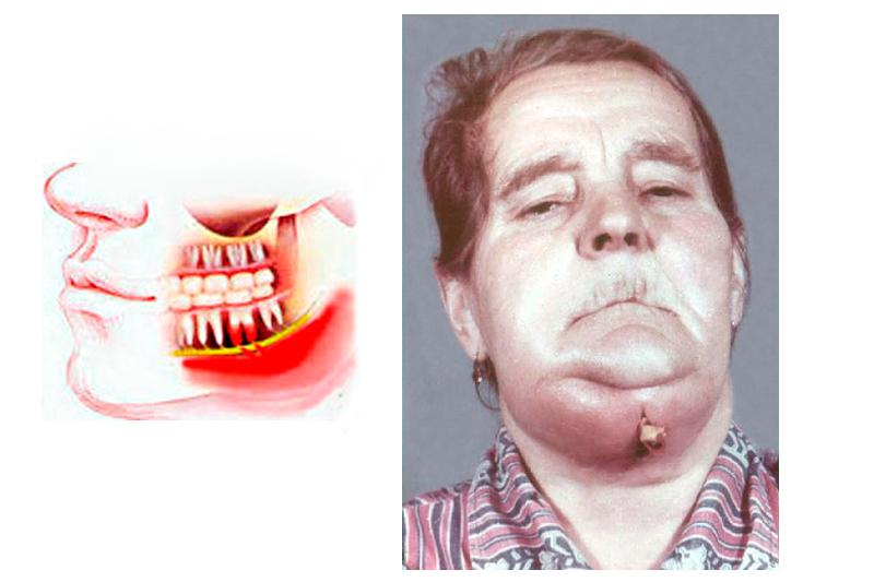 Флегмона челюстного сустава узи плечевых суставов в минске