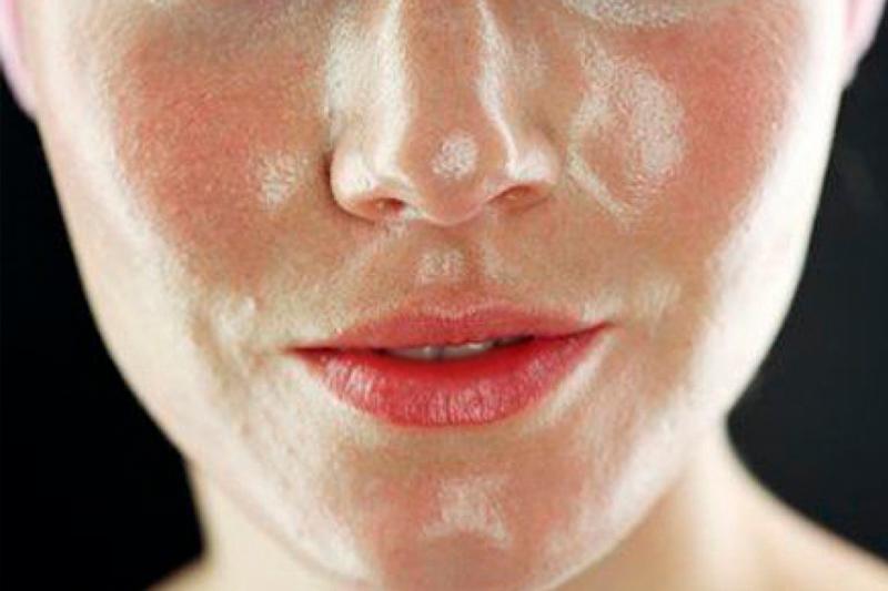 Жирная кожа симптомы и лечение thumbnail