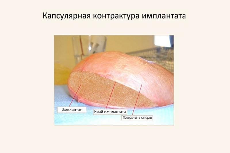 Капсулярная контрактура
