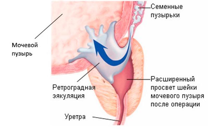 При эякуляции сперма не выходит наружу