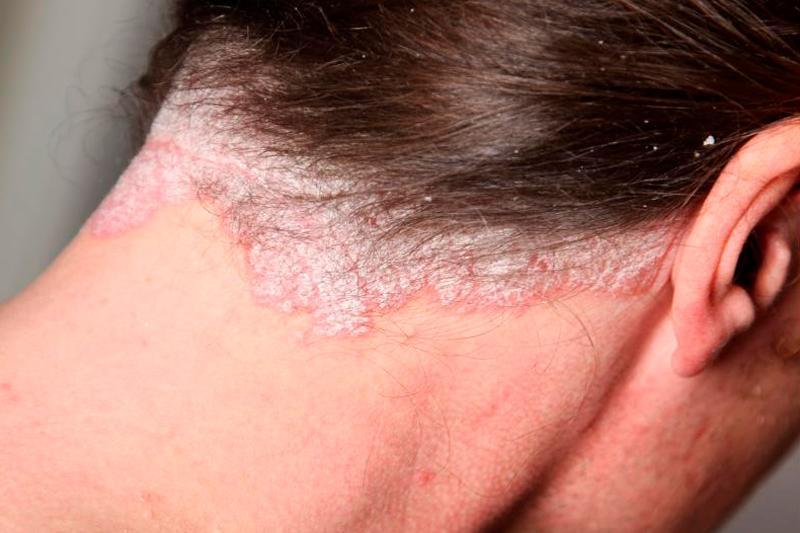 Себорейный дерматит — описание, причины, симптомы, лечение