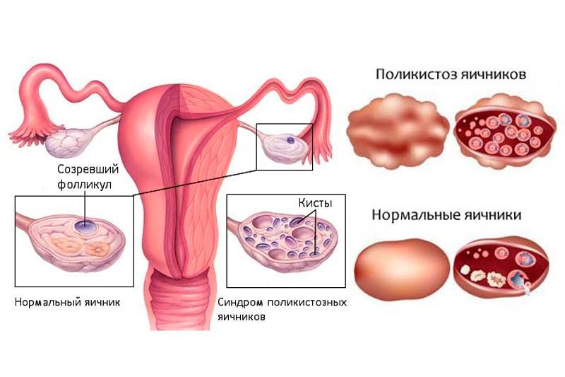 поликистоз яичников. фото