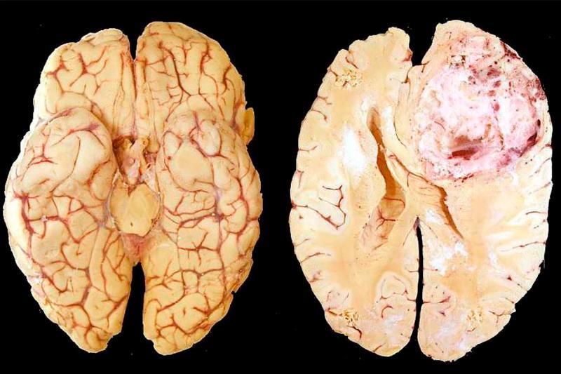картинка рака мозга популярное растение