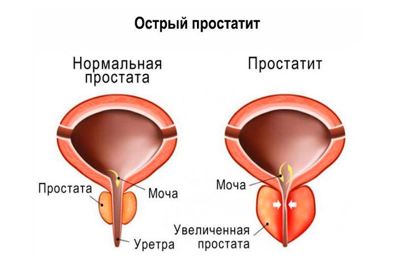 хронический простатит у мужчин симптомы