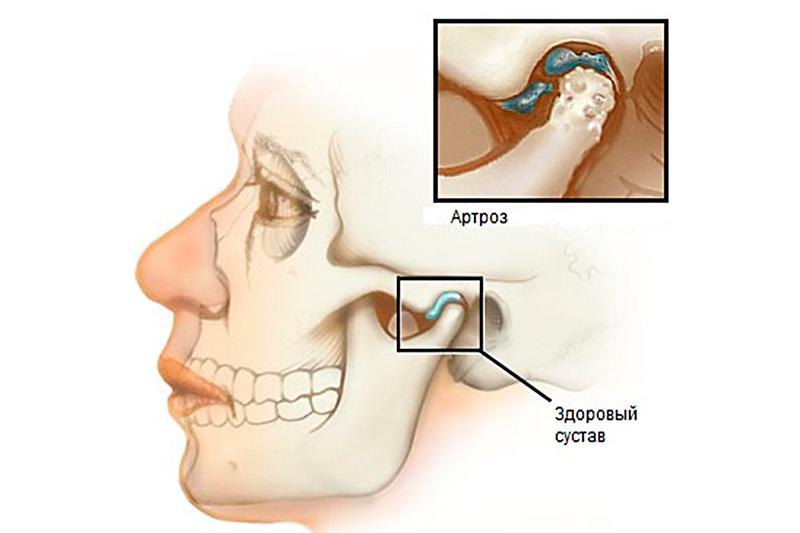 Нарушении функции височно-челюстного сустава народные средства при лечении бурсита коленного сустава