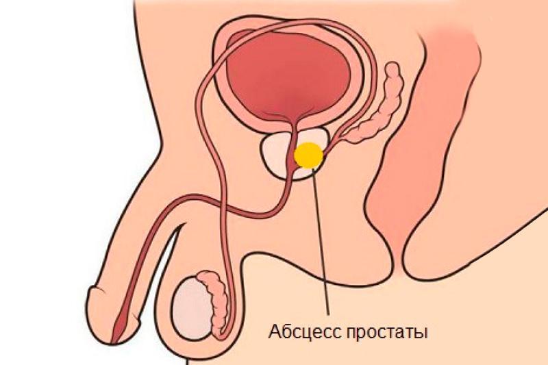 Абсцесс предстательной железы